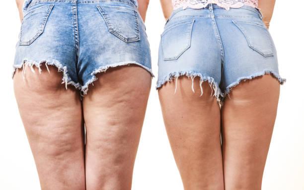 jak zredukować cellulit